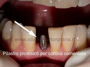 impianto dentale:i posizionamento del moncone