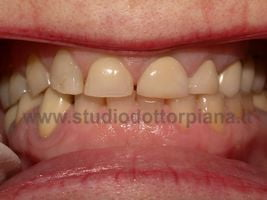 Corone zirconio ceramica finite
