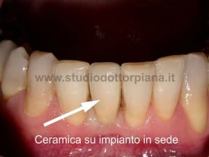 impianto incisivi inferiori dente ultimato
