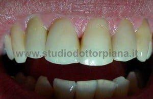 Dente con zirconio ceramica