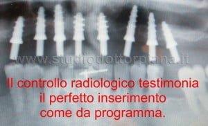 controllo radiografico degli impianti