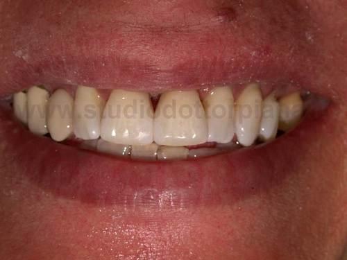 diastema dentale rimedi (dopo)