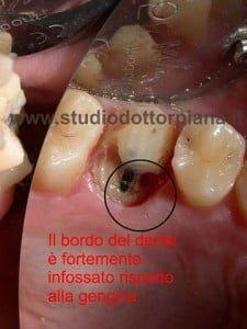 allungamento corona clinica (prima)