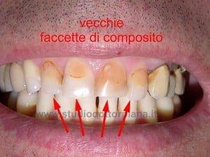 faccette dentali in composito - prima