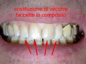 faccette dentali in composito - dopo