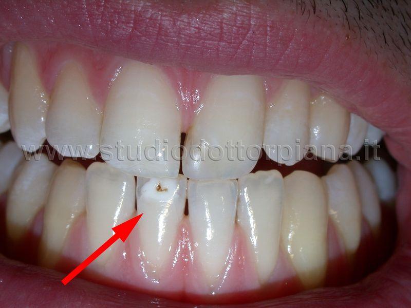 Macchia bianca denti