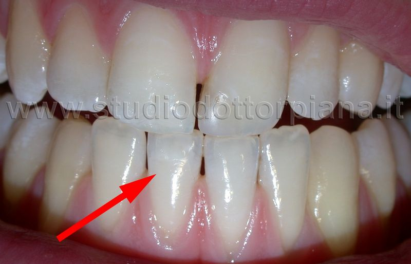 Macchia bianca denti correzione