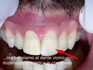 ricostruzione del dente vicino