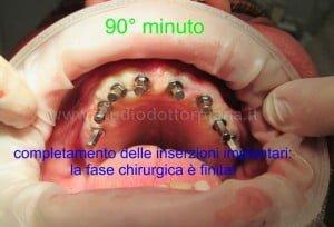 implantaggio completo