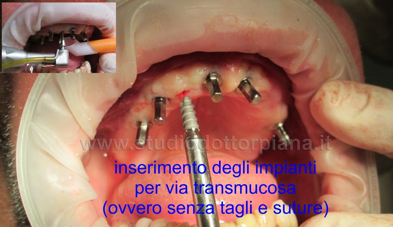Implantologia dentale flapless