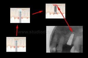 Mini rialzo del seno mascellare risultato operatorio