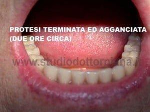 mini impianti dentali - dentiera agganciata