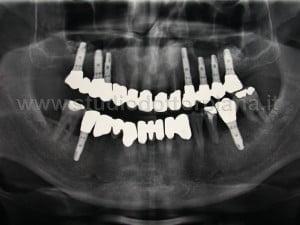 radiografia finale di controllo