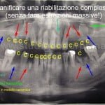 Implantoprotesi complessa