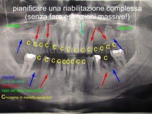 Implantoprotesi complessa progetto