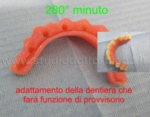 La vecchia dentiera viene adattata come provvisorio