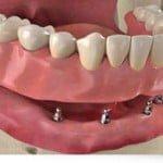 mini-impianti dentali e overdenture