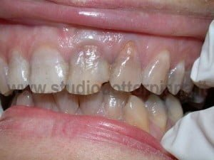 Ricostruzioni estetiche dentali..prima