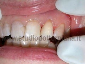 Ricostruzioni estetiche dentali..dopo