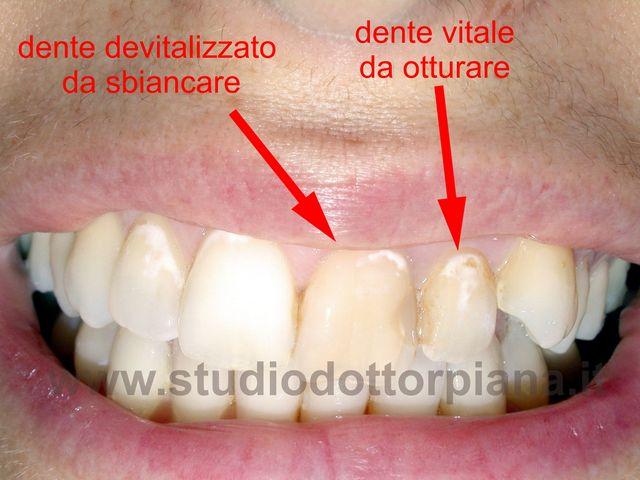 sbiancamento denti devitalizzati (prima)