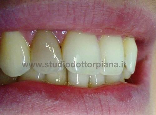 dente necrotico scuro