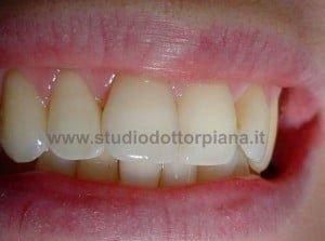 Sbiancare un dente necrotico (risultato)
