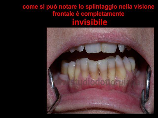 splintaggio3