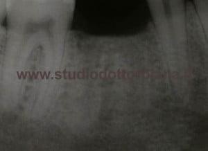 Radiografia preoperatoria