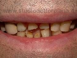 usura smalto denti