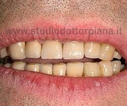 usura smalto denti con ceramizzazione