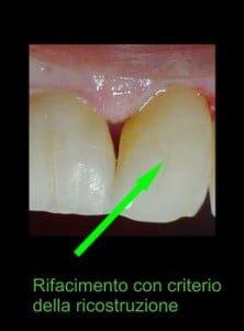 Errori dentista: otturazione 2 rifacimento