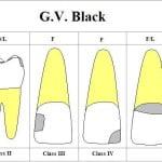 otturazione sbagliata : errori dentista