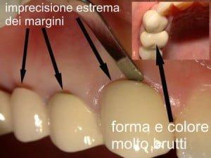 errori odontoiatrici: la corona in ceramica