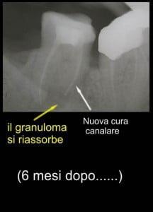 errori del dentista rottura strumento canalare