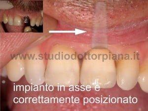 Implantologia dentale rischi estetici
