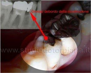 errori dentista otturazione 3