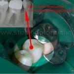 errori dentista otturazione