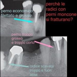 errori odontoiatrici perno moncone