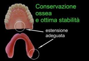 Dentiere ampie e ben regolate