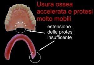 Errori dentista: dentiera instabile