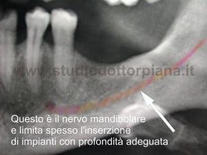 Rigenerazione ossea guidata GBR- studio radiologico