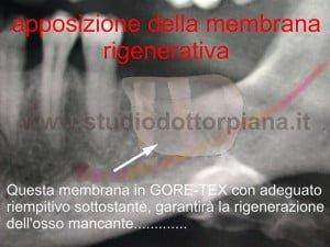 Gbr rigenerazione-ossea-guidata