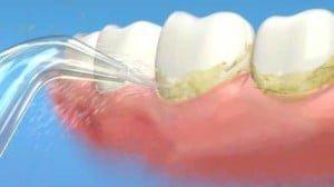 idropulsore e igiene dentale
