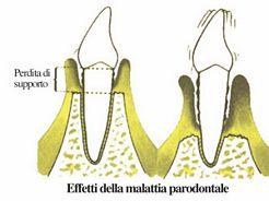 parodontopatia