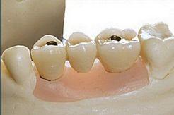 Protesi orale verona