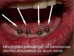mini-impianti per ancoraggio dentiera inferiore con implantologia dentale a carico immediato