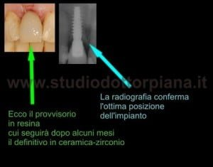 implantologia dentale a carico immediato post-estrattivo