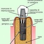 implantologia dentale fasi : criteri base (semplificati)
