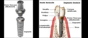 struttura impianto dentale