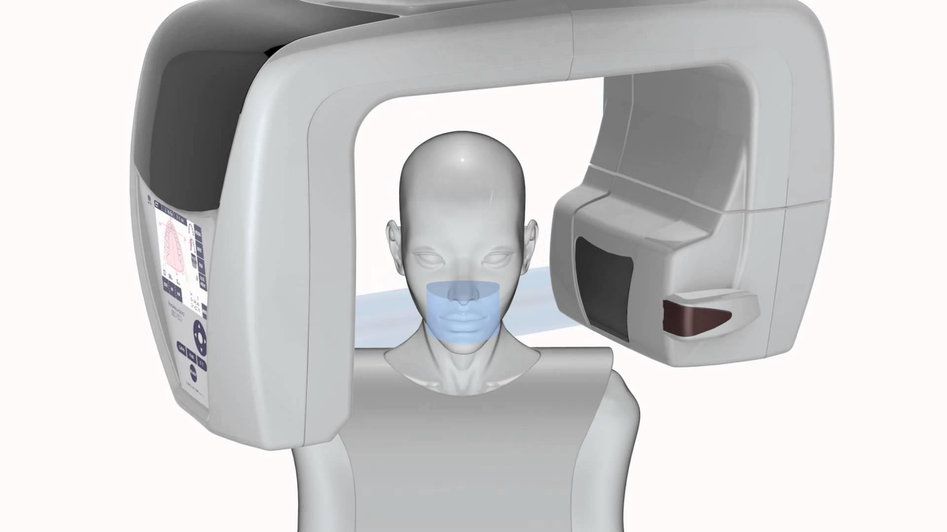 3d radiologico 3d - sensore